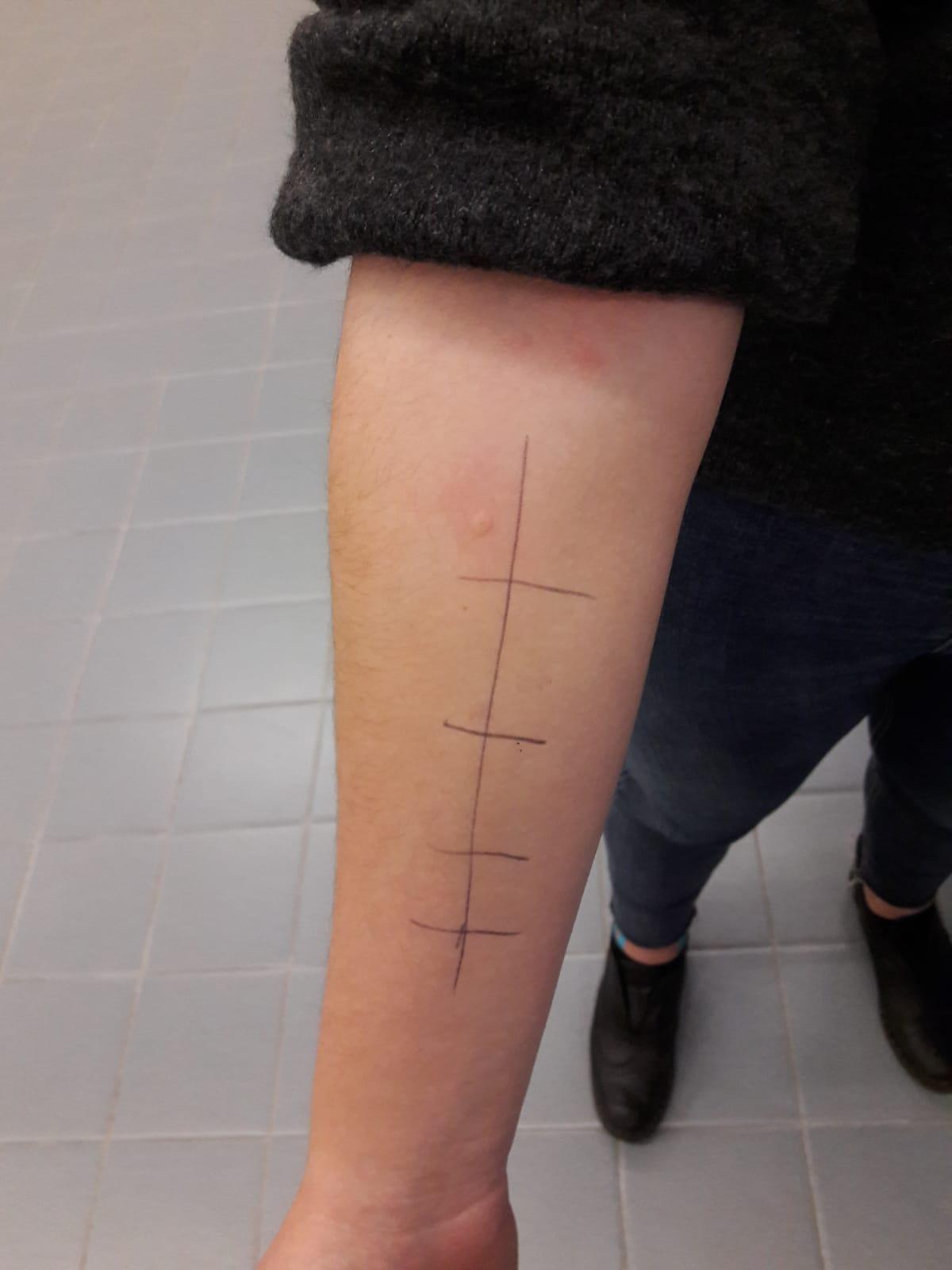 Prove allergiche cutanee - prick test
